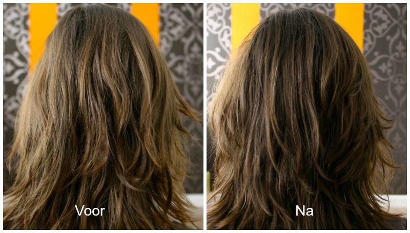 botox haar voor na