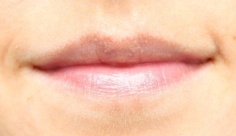 Carmex lip balm swatch